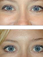 Botox/Dermal Fillers